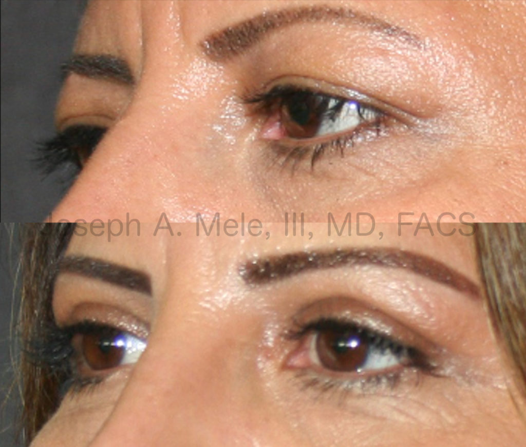 Upper and Lower Blepharoplasty Before and After Pictures: Sagging upper eyelids, caused by excess, upper eyelid skin, leads to a tired and disinterested appearance. Blepharoplasty can open your eyes to a more youthful, bright and alert appearance.
