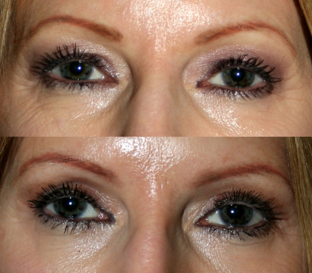 The above upper and lower blepharoplasty (Quad Bleph) before and after photos reveal improvements in the upper and lower eyelids' appearance. Less upper eyelid skin means smoother, cleaner lines and that eye makeup stays put better. Lower eyelid improvements include smoother appearance and less bagging of both skin and lower eyelid fat.
