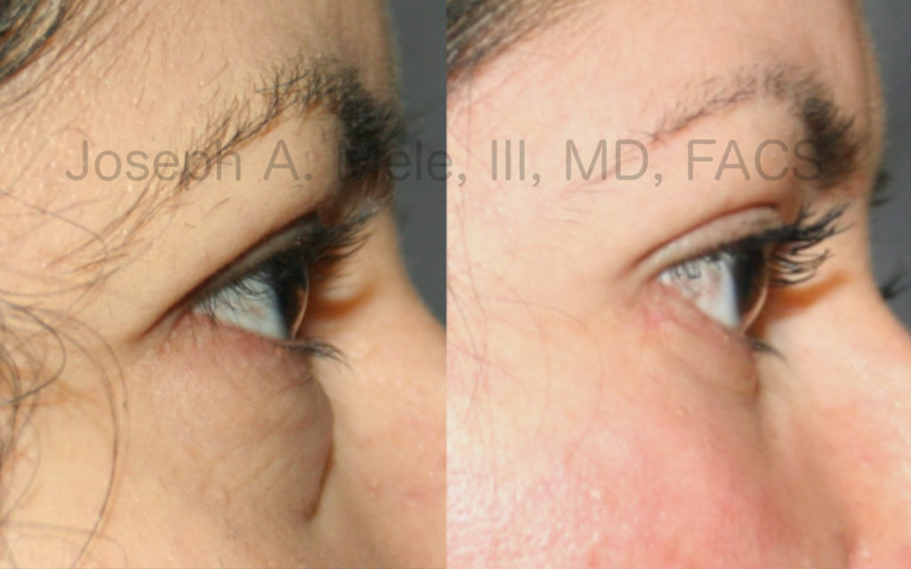 Lower eyelids bags can be corrected with lower eyelid surgery. See these lower blepharoplasty before and after pictures.