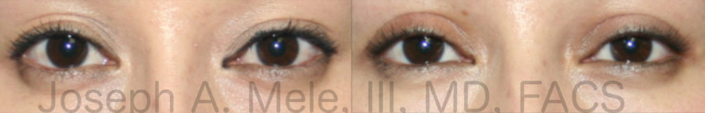 Asian Eyelids surgery (Double Eyelid Surgery) is used to create more symmetrical upper eyelid creases, as seen in the Asian Eyelid Upper Blepharoplasty before and after pictures.