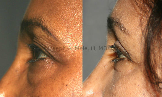 This Blepharoplasty Before and After Photo set shows how eyelid surgery can remove excess upper eyelid skin and lighten baggy lower eyelids.
