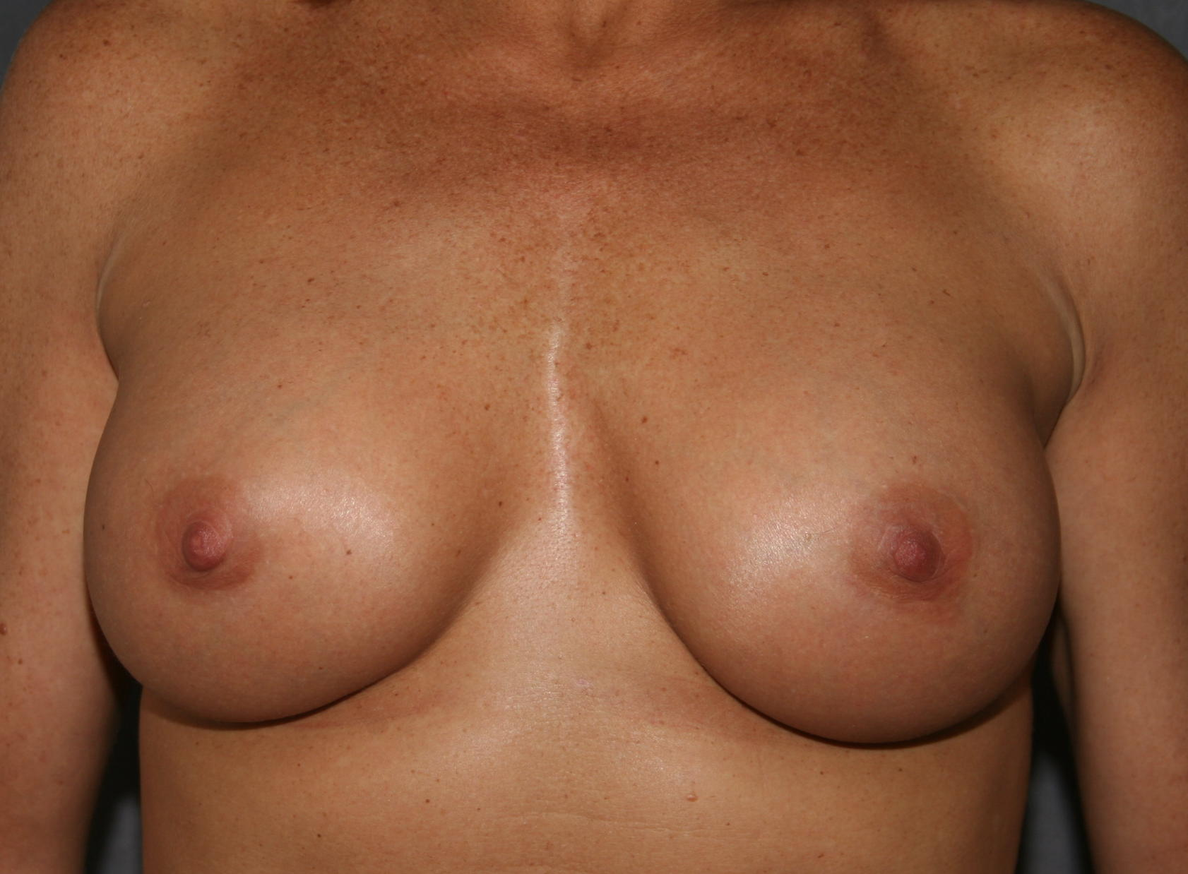 After breast augmentation. Breast implant diameter was selected to enhance cleavage without overly enhancing width.