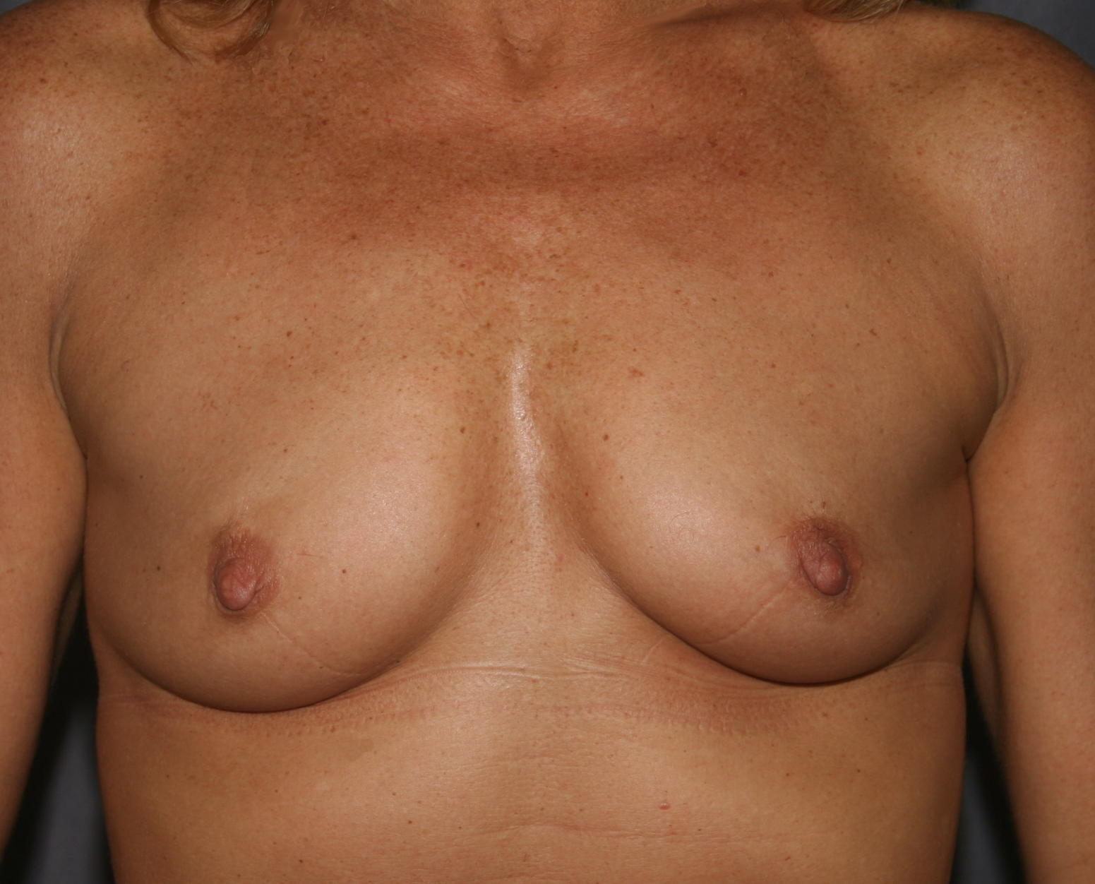 This patient desired restoration of her lost breast volume.