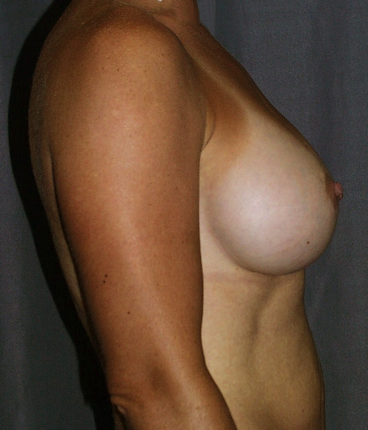 After breast augmentation. Enhanced projection is obtained by using a higher profile implant.