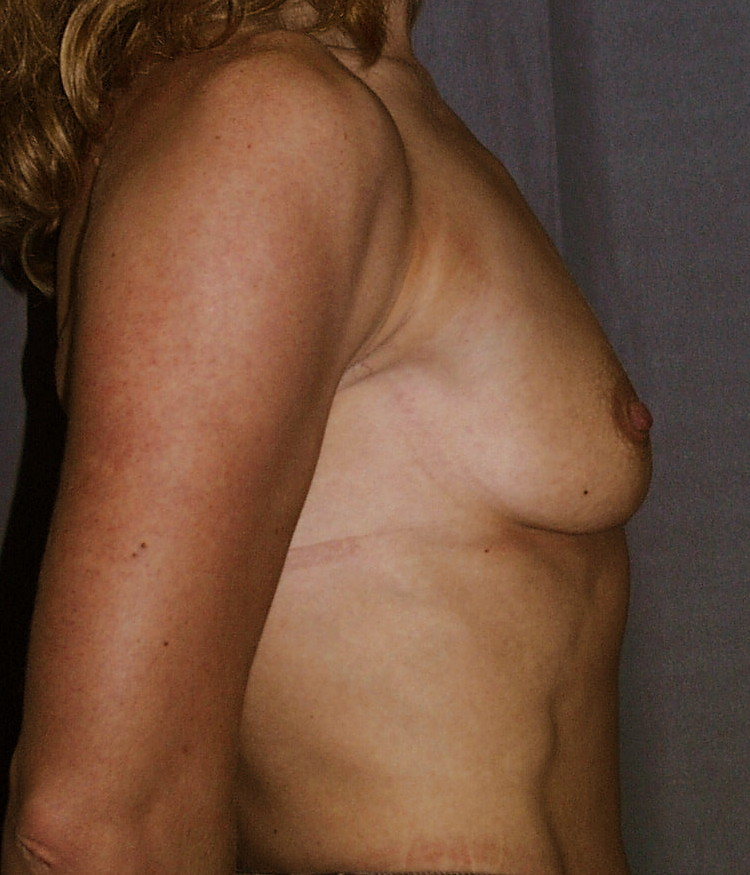 Prior to breast augmentation. The breast maintains a low projection but more volume is desired.