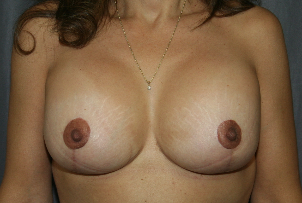 """After breast augmentation and an """"inverted-T"""" breast lift. The periareolar and vertical components of the scar can be seen. The horizontal scar is hidden in the inframammary fold."""