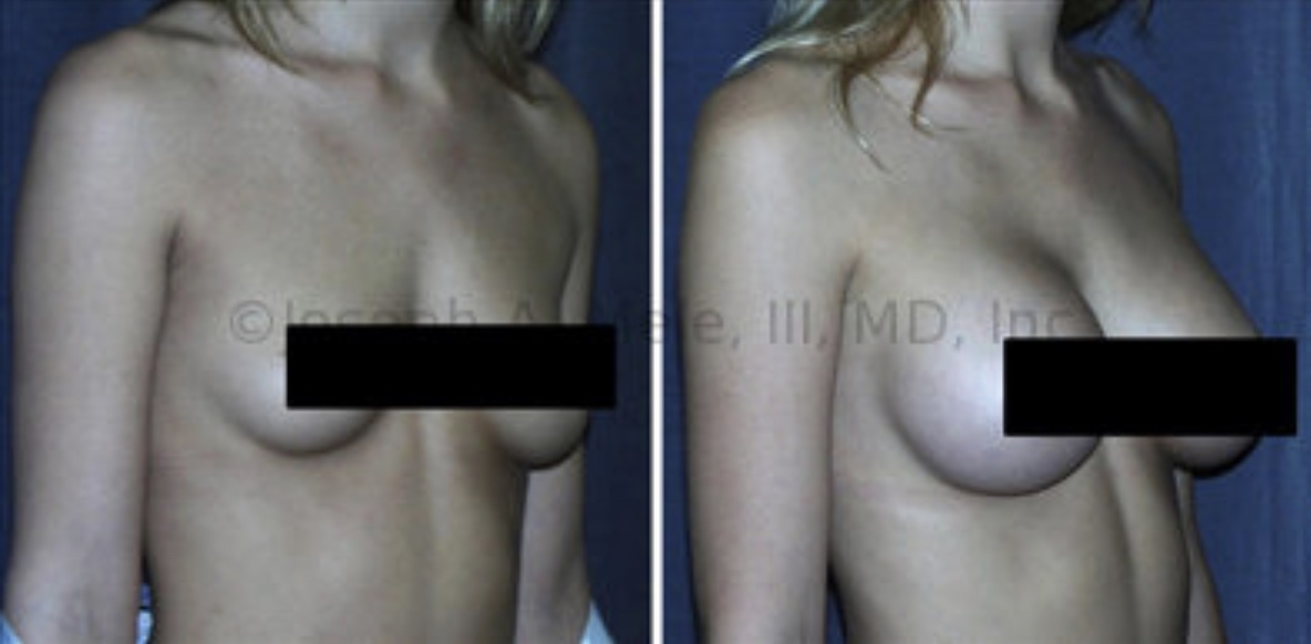 Optimal Breast Enhancement pays attention to both the size and the shape of the breasts. Above Breast Augmentation with Breast Implants is performed to enhance the size of the breasts and even out the asymmetry.