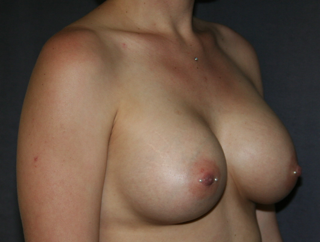 Breast Augmentation with Nipple Piercing After