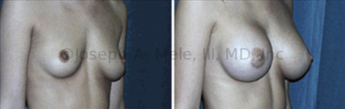 Breast Augmentation can help with pseudoptosis and  asymmetry. The breasts appear bottomed out before surgery, with most the breast volume located below the nipple and mild pseudoptosis. The Breast Augmentation before and after pictures above show how Asymmetrical Breast Augmentation can correct the shape of the breasts and the size discrepancy. In this case, the right breast was smaller than the left before surgery, so a larger Breast Implants was used on the right.