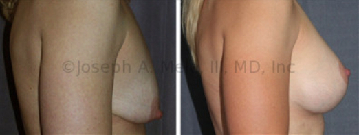 The main goal of Cosmetic Plastic Surgery is a pretty result. The Breast Augmentation Lift allows for control of both the size and the shape of the breasts. The cost is additional scar. In this case, an Inverted-T scar was needed.