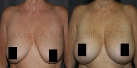 Breast Augmentation with Breast Lift was used to enlarge the breasts, elevate the nipple and tighten the breast skin, especially the skin that hangs at the bottom of the breasts. The technique used, a horizontal breast lift, does not require the vertical scar seen in the anchor or inverted-T type breast lifts.