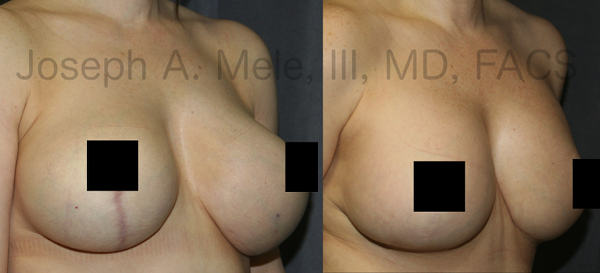 The above Breast Augmentation Revision pictures demonstrate the correction of bottoming out.