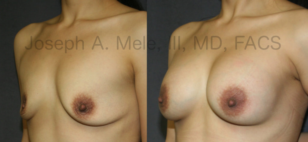 The Breast Augmentation before and after photos above show how Breast Implants alone add back the volume lost with pregnancy and breastfeeding. A breast lift, in this case a Periareolar Breast Lift, could have been used to both reduce the areolae and bring the nipples a little higher on the chest, but the result is good, and there is no additional scarring around the nipple.