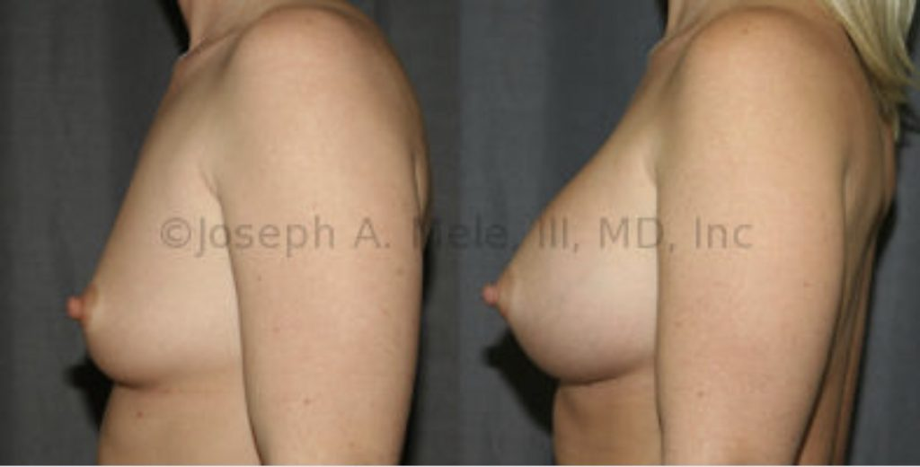 Breast atrophy after pregnancy is very common. Breast Implants can restore lost volume and restore the proportions that enhance the breasts' shape both in and out of clothing.