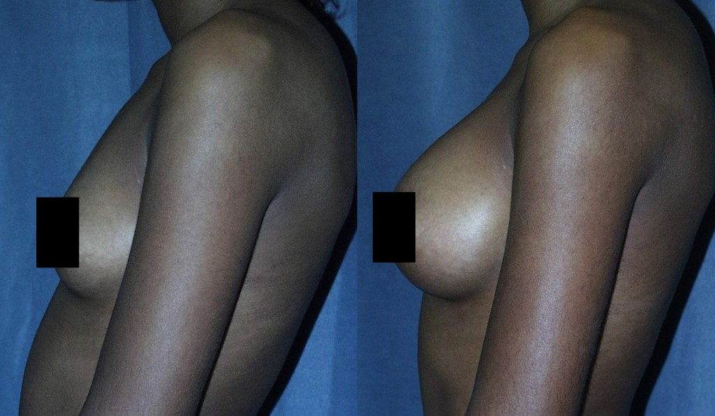 Breasts that have always been small have an advantage when it comes to Breast Augmentation.