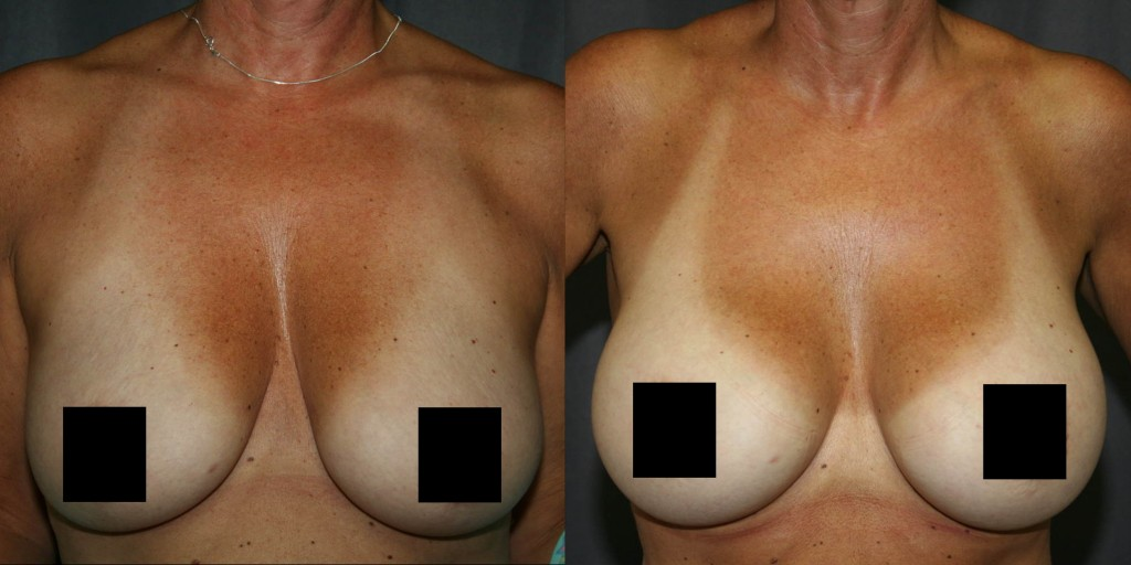 """Breast pseudoptosis or """"fake sagging"""" responds well to Breast Augmentation."""