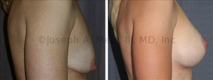 The woman above fails both the Pencil Test and the Pinch Test, but a good result is still achieved with a combination of Breast Augmentation and Breast Lift. The Breast Augmentation increases volume, while the breast lift corrects the shape.