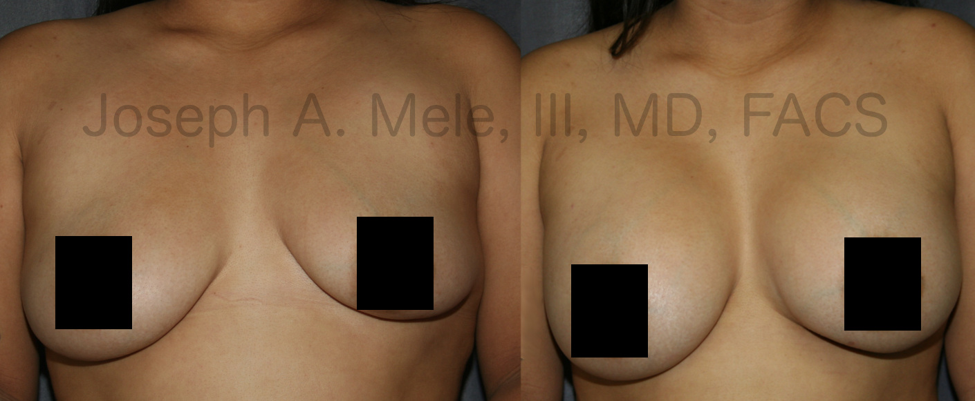 Breast Augmentation Revision Surgery - Stage II. The second stage entailed lowering the left implant pocket, expanding the lower, contracted pole of the left breast and asymmetrically augmenting the breasts to decrease the size difference.