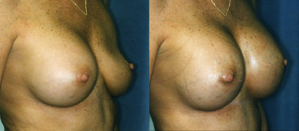 Breast Implant Deflation and Replacement