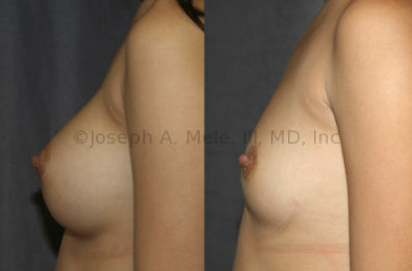 Breast Implant Removal Before and After: This patient has great breast skin elasticity, so she has no skin sagging after her Breast Implant Removal. Breast Implant Remova surgery is just as personal as Breast Augmentation surgery, and the reasons for it vary. Only 1% of all Breast Augmentation patients have their Breast Implant removed.