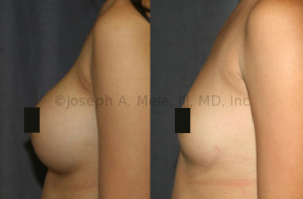 Breast Implant Removal Before and After Pictures - Side View
