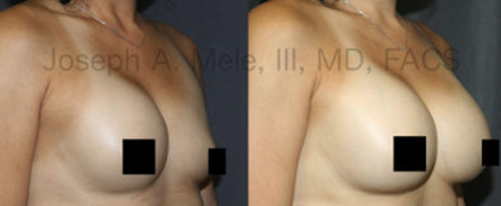 These Breast Implant Rupture Before and After photos illustrate a common case of Breast Implant Revision Surgery. The coverage is variable and depends on the manufacturer.