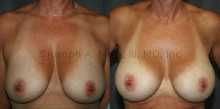 "The woman above fails the Pencil Test, but passes the Pinch Test.  Breast Implants alone can correct this type of ""Fake"" sagging or pseudoptosis."