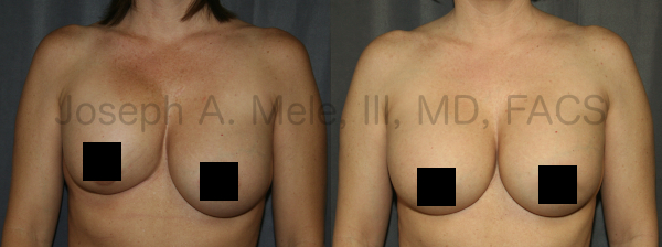 Breast Augmentation Revision for Capsular Contracture Unilateral