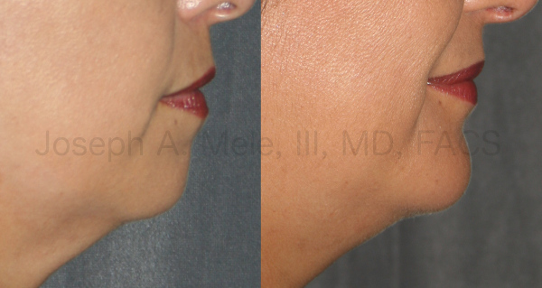A strong female chin still looks feminine and helps to define the border between the face and neck.