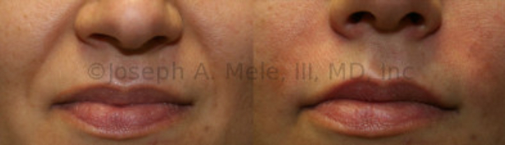 Dermal Filler to Treat Facial Wrinkles - Immediately after Perlane injections to Facial Wrinkles in the Naso-Labial folds with typical post-injection redness and swelling. The redness lasts about 24 hours, and can often be concealed with makeup.