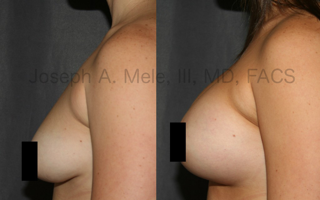 Breast Augmentation can Enlarge Small Breasts or Restore Lost Volume after Pregnancy or Weight Loss.