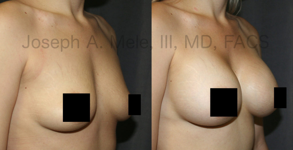 The best breast augmentation is achieved by selecting breast implants that are proportionate to the chest.