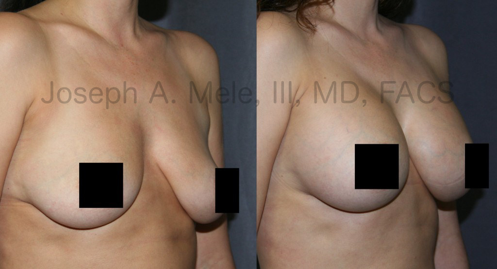 Breast Augmentation remains the most popular Cosmetic Plastic Surgery, but Breast Implants have changed.