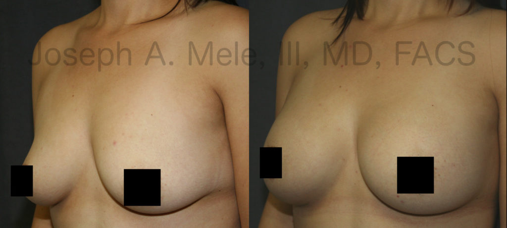 Breast Implants can enlarge and enhance the shape of a woman's breasts.