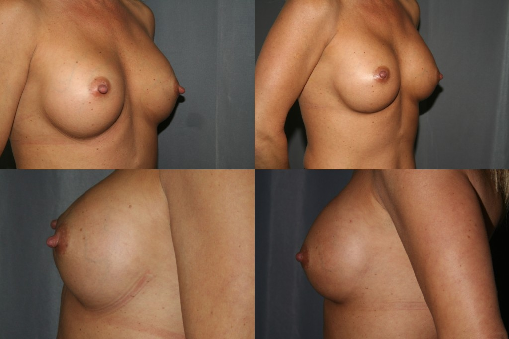 Breast Augmentation Revision with Nipple Reduction - Before (left) and After (right)