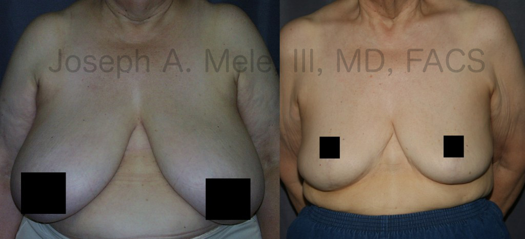 Breast Reduction improves the proportions of the breasts, relieves the symptoms that large heavy breasts cause, and makes shopping for clothing much easier.