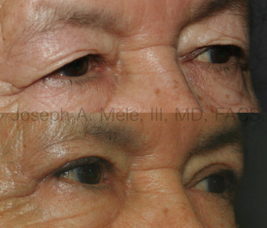 In the upper (before) shows severe hooding of the entire upper eyelid. After her blepharoplasty, her upper eyelids are now visible, and a smooth upper eyelid crease has been created.