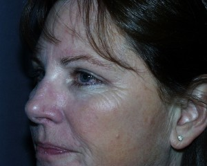 After blepharoplasty the skin of the upper eyelid can now be seen above the lashes.