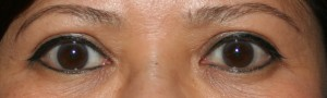 One year after upper blepharoplasty the fold above the eye remains smooth and discrete.