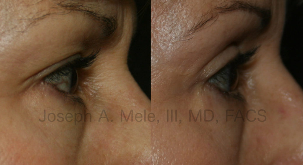 Eyelid lifts can literally open our eyes, making us look more awake and alert. As the upper eyelid skin becomes more redundant, it begins to rub off upper eyelid makeup and can come to rest on the eyelashes. The result is a heavy sensation and a worn down appearance, even when we are well rested.