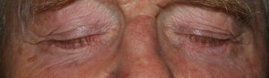 After lower blepharoplasty - the excess fat has been removed and the bags are gone.