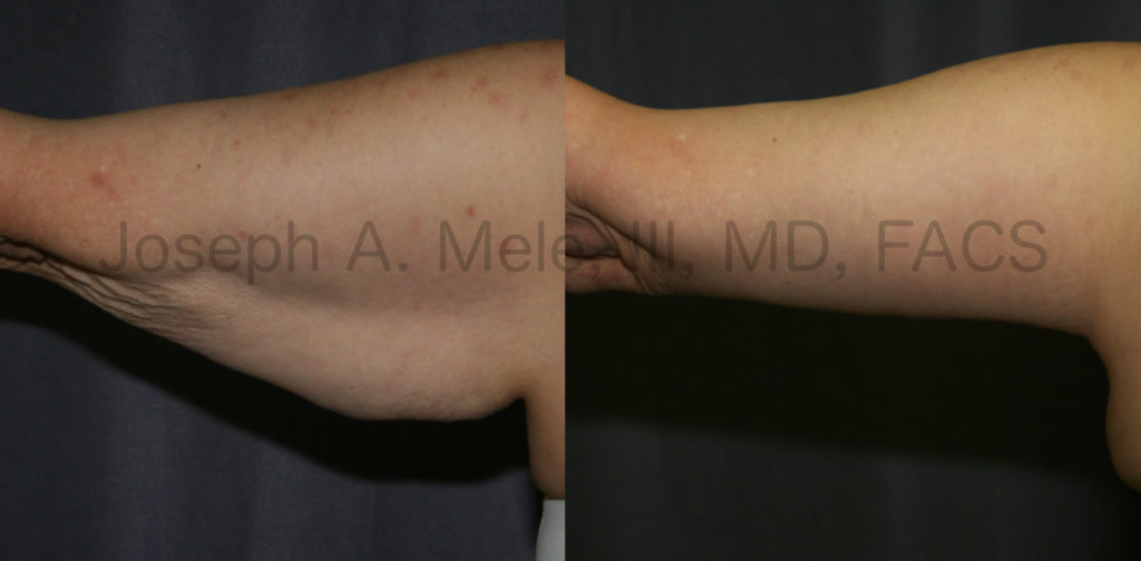Brachioplasty removes excess skin and fat creating a tighter, smaller upper arm.