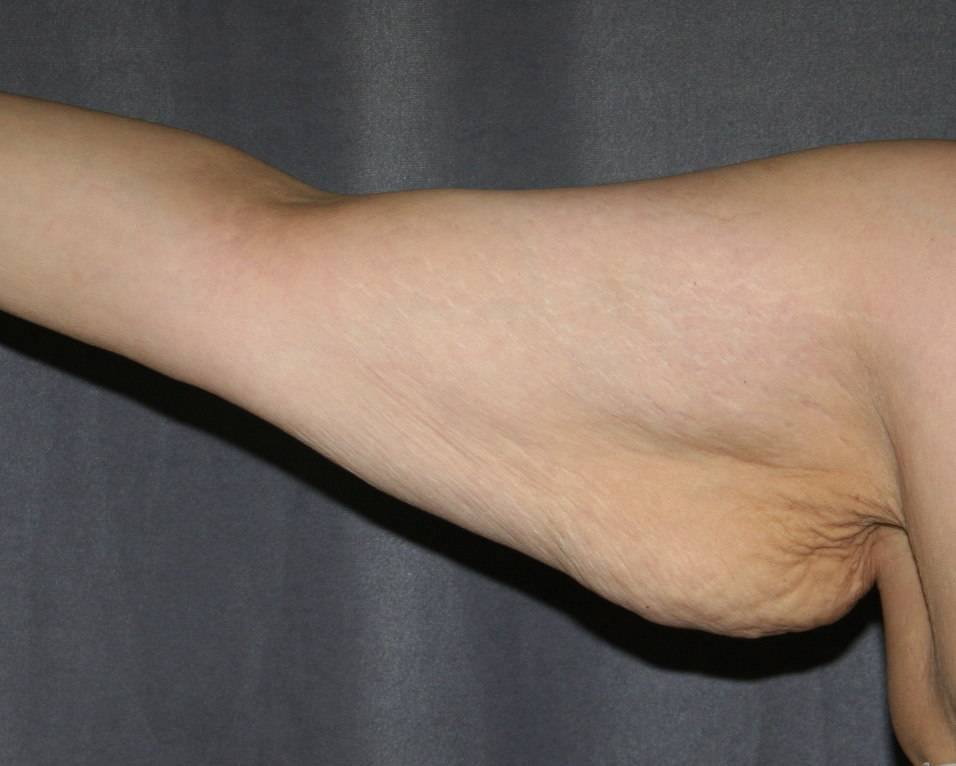 Right Arm after weight loss and before Arm Lift (Brachioplasty)