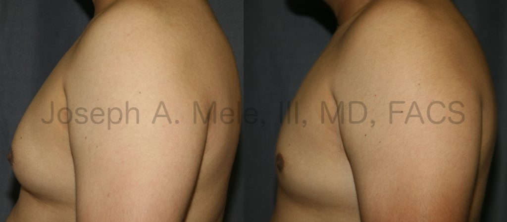 When Gynecomastia is distributed throughout the chest, more must be done. In this case, Liposuction was used to remove the bulk of the disproportionate chest tissue. If a glandular component is present beneath the nipple, this tissue also needs to be removed.