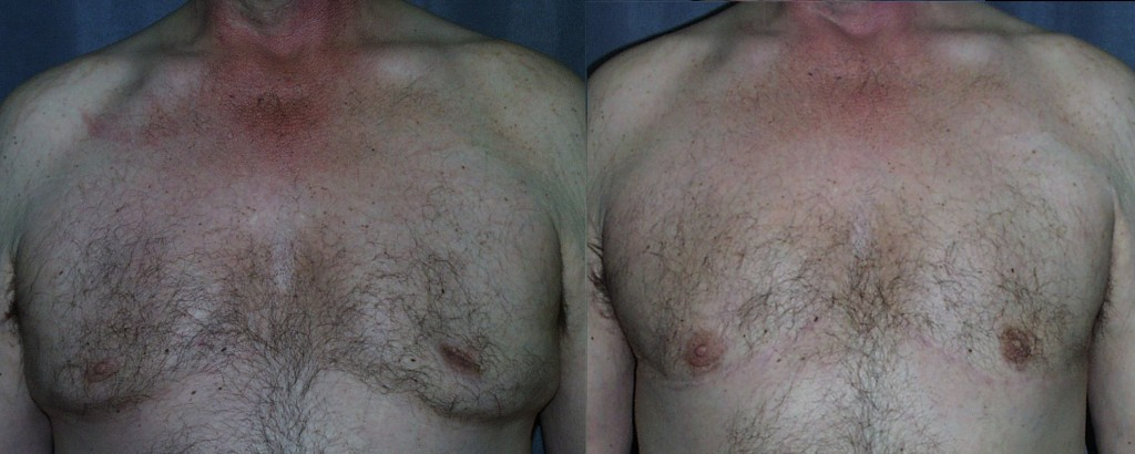 The more extreme the gynecomastia, the more extreme the treatment. Here not only was excess breast tissue removed, but excess skin was also excised.