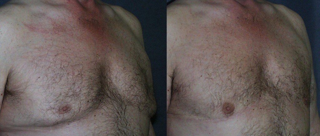 This patient had prior gynecomastia reduction, with improvement in the size of the chest; however, he was left with indented nipples from over resection, and the excess skin was never addressed. By replacing tissue beneath the nipples, and removing the excess skin, a more aesthetic result is obtained.