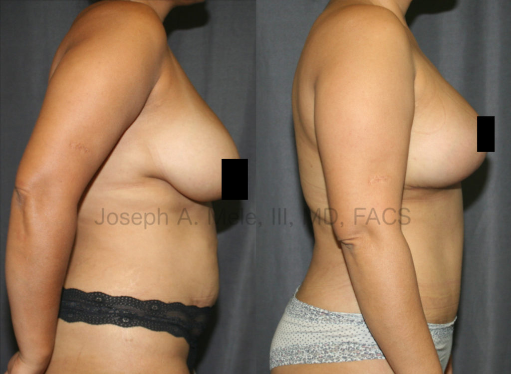 Breast Augmentation Lift – When the breasts are close to the desired size, sometimes a Breast Lift alone is all that is needed to create youthful, perky breasts. If the upper pole is empty, a small implant can be used to  enhance the shape of the breasts by adding fullness to the bust line without over exaggerating the size.