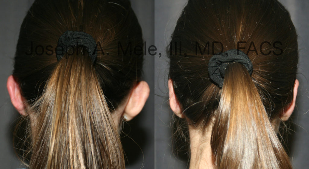 Otoplasty, ear pinning, reduces the appearance of prominent ears by bringing them closer to the head.