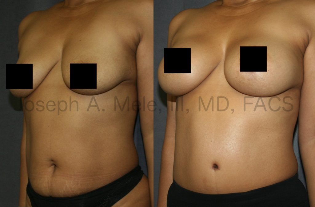 Mommy Makeovers are a class of cosmetic plastic surgery procedures that enhance both the breasts and the belly. The Mommy Makeover before and after pictures above are an example of what can be accomplished with the combination of Breast Augmentation Lift and Tummy Tuck. As with all plastic surgery, careful patient selection is very important.