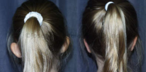 Ear Pinning For Children 5 or older - before and after pictures